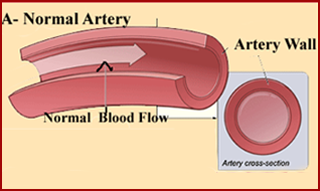 image of a good artery